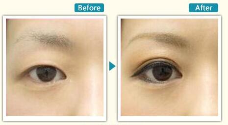 北京韩式双眼皮手术