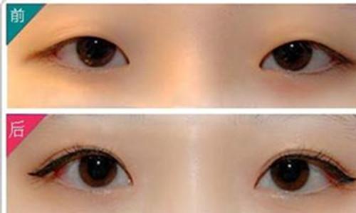 韩式双眼皮是在上睑皮肤的合适位置