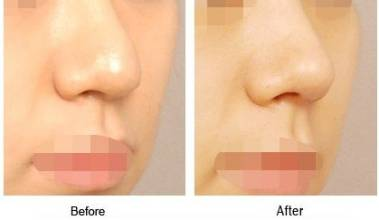 鼻尖整形效果怎么样