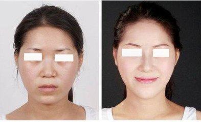 5、 出于是垫下巴的手术切口是在求美者的口腔内,所以求美者在手术