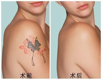要根据求美者纹身的部位,大小以及医院的技术来决定,不同的求美者纹身