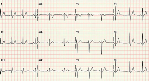 当心电图上出现异常,显示心脏机能有某种障碍,可用来及早发现心脏