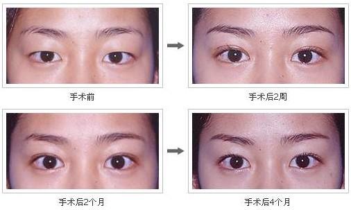 小眼睛的女生总是希望自己能够有一双水灵的大眼睛,双眼皮手术就能很
