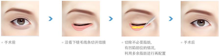 祛眼袋切口设计图