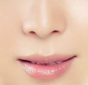 新生儿鼻子内部结构图