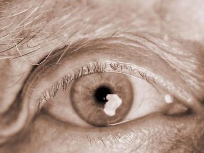 探究老人脸部浮肿的原因