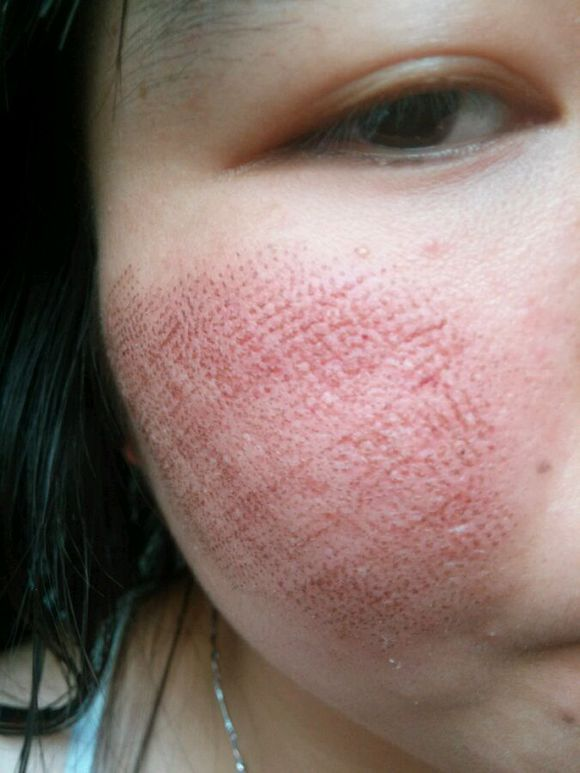点阵激光去痘坑的安全性很高,点阵激光去痘坑的原理是激光能直接在穿透的部位形成矩阵状的小白点。这些小点周围的皮肤立即启动横向修复机制,不会对爱美者的肌肤造成任何的损伤。在祛除痘坑的同时还能促进皮下胶原蛋白的再生,使爱美者的皮肤变得光滑、细腻有弹性,达到双重的美容功效。 点阵激光去痘坑的当天不能化妆,在点阵激光治疗完之后面部皮肤会有一些微红,2天左右就能消失,术后一周内可以采用清水进行洗脸,但是不可以用洗面奶,一周左右治疗部位会结痂,尽量保护结痂,不要人为的蹭掉这些结痂,一般5-7天,这些结痂会完全脱落,待