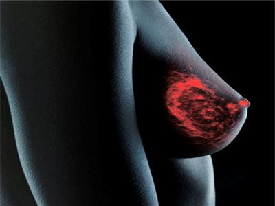 乳房疾病的症状是什么样的