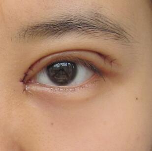 双眼皮是一种非常漂亮的眼形