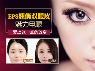 北京切开双眼皮手术怎么样