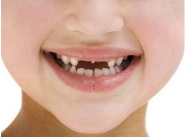 儿童可爱牙齿高清照片