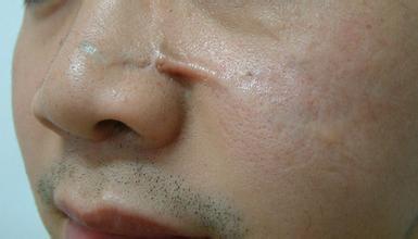 使肌肤深层基质细胞(成纤维细胞、肌成纤维细胞)变性转化疤痕细胞