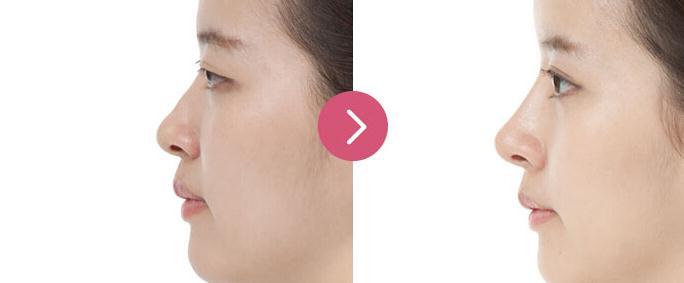 玻尿酸隆鼻对比图。玻尿酸隆鼻你知道吗?注射玻尿酸也才能隆鼻,注射玻尿酸隆鼻格外便利迅速。注射玻尿酸隆鼻,一样才能让你的五官立刻立体起来。下面我们以来了解一下玻尿酸隆鼻吧。 玻尿酸隆鼻对比图 玻尿酸隆鼻和传统隆鼻手术的区别:注射玻尿酸隆鼻和传统隆鼻手术的区别在于,注射隆鼻不用开刀,不用借助体隆鼻,不会在面部留下伤痕,痛苦小,术后恢复快,注射隆鼻以后格外自然,看不出隆鼻的踪迹,让你不知不觉变美了。玻尿酸隆鼻区别于传统隆鼻手术之处还在于玻尿酸隆鼻不是性的,一般保持6至12个月,注射隆鼻的价格比隆鼻手术价格要低。