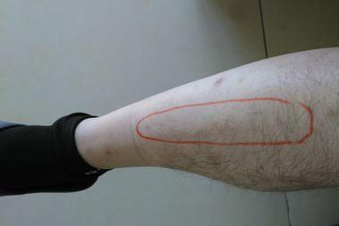 小腿骨头痒是怎么回事