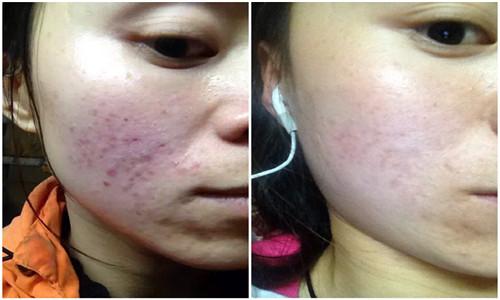 皮肤组织的破坏,发炎后的色素沉淀会使长过红痘痘的地方留下黑黑脏脏