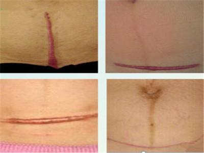 如何治療增生性疤痕呢圖片