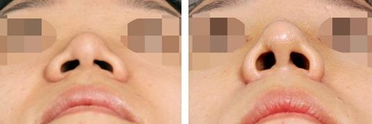 鼻小柱整形注意哪些护理
