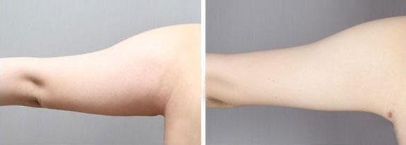 上臂吸脂手术是利用负压吸引的原理,通过吸脂器械,将肥胖区域的皮下脂肪细胞吸出体外,使该区域脂肪细胞的数量大大减少,术后皮肤平坦,能实实在在地将脂肪细胞自皮下抽走,确实减少脂肪细胞的数目,使多余的脂肪无处可积,达到长久瘦身的目的。通过手臂部吸脂手术来改善上臂雄壮及肩背部的宽厚,上臂部吸脂手术可以更加使女性的臂膀变的骨性而富有动感之美。上臂部吸脂手术后不影响工作及日常生活,短期内会有轻微的不方便,上臂部吸脂手术完全恢复需要三周左右。 手臂吸脂整形手术中会在腋窝里面开一个小口,将上臂部后侧及肩部的脂肪分层、均