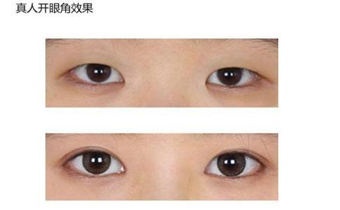 双眼皮与开眼角案例
