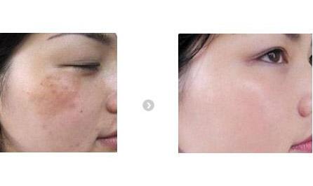 随着整形美容技术的不断发展,激光祛斑是一种比较先进的祛斑技术,很多