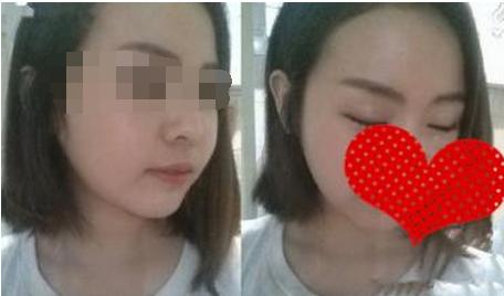 瘦脸针注射前,首先是护士对我的脸部进行消毒