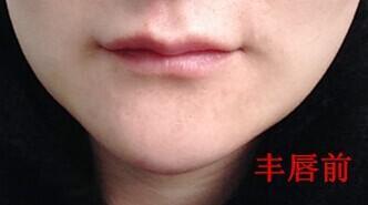玻尿酸丰唇
