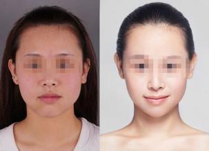 果酸换肤美肤的案例