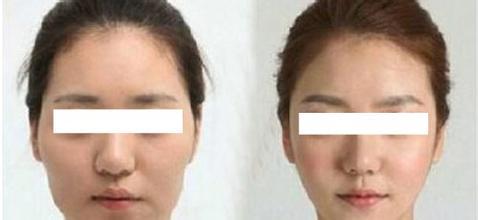 毛孔粗大治疗案例分享