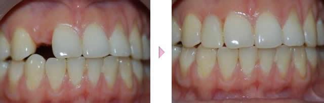 种植牙手术过程案例