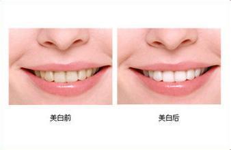 牙齿美白手术案例
