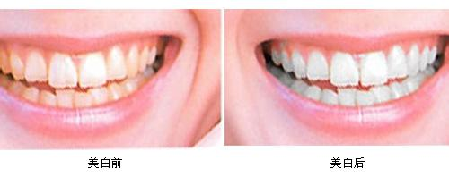 牙齿美白手术案例分享