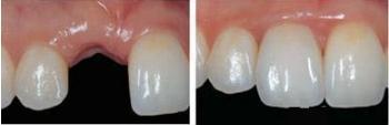 种植牙手术案例分享