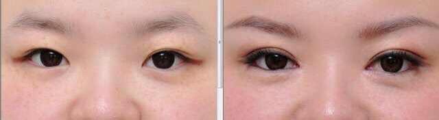 双眼皮失败修复过程案例
