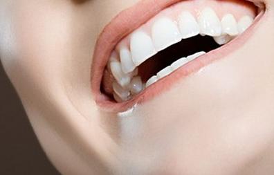 美白牙齿的方式有冷光,烤瓷,贴面美白,牙齿美白胶都是可以的!图片