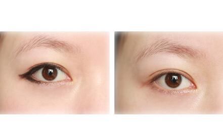 合肥激光洗眼线有风险吗