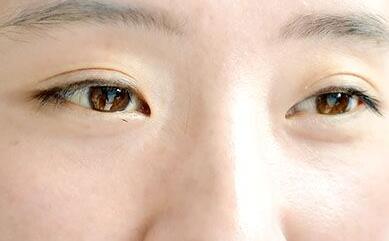 老年人为什么会出现眼睛浮肿