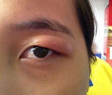 眼睛看疾病图解