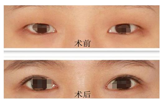 开眼角和双眼皮手术怎么样