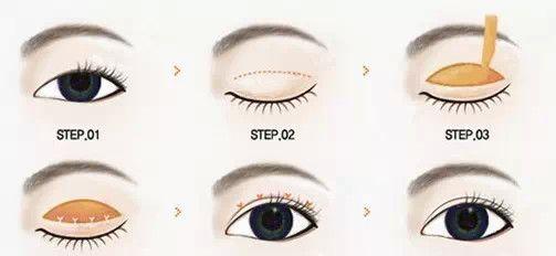 切开双眼皮方法