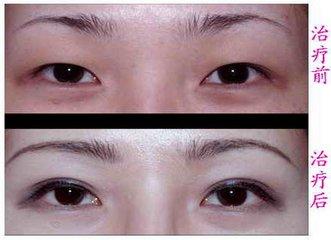 双眼皮埋线手术过程是怎样的