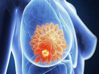 治疗乳腺增生的偏方主要有哪些