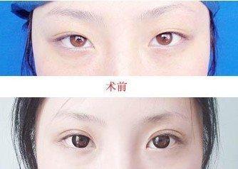 北京韩式双眼皮的手术过程是什么