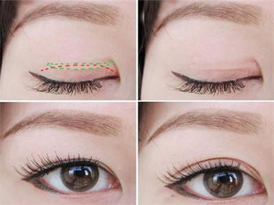 双眼皮手术恢复过程图