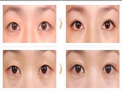 韩式无痕双眼皮的必知术后注意事项