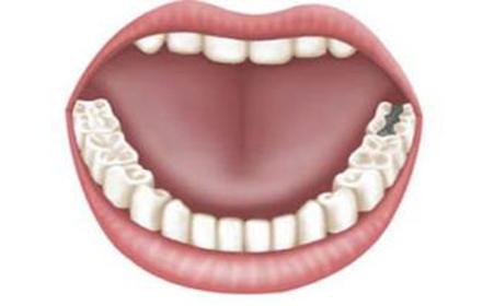 儿童牙齿结构图素描