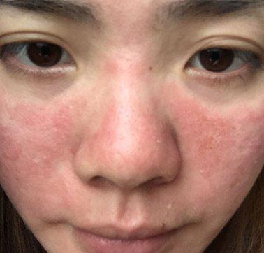 脸上起红疹,导致脸上起红疹的原因
