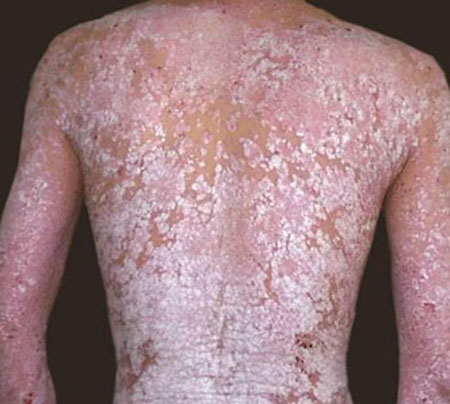 老人肺結核晚期癥狀有哪些癥狀