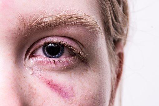 双眼皮手术后怎样护理?