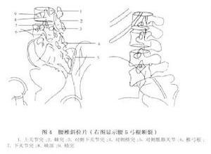腰部峡部崩裂和脊椎滑脱