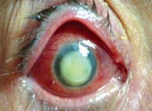 急性眼眶蜂窝织炎